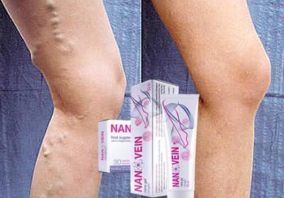 Nanovein gel și capsule pentru tratamentul venei varicoase, mod de administrare, ingrediente