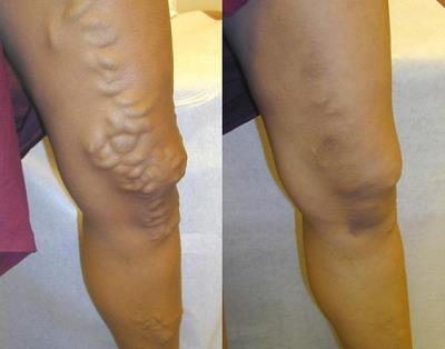 picior lobs în varicoză