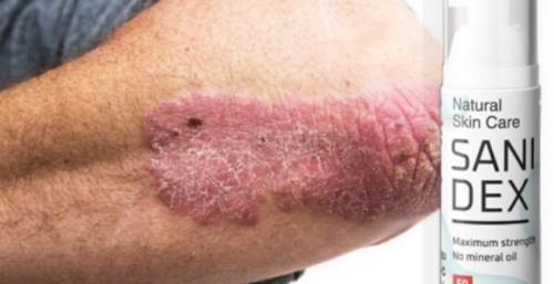 Sanidex te scapa rapid de psoriazis, ingrediente, mod de administrare